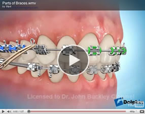 glossary of orthodontic terms pdf