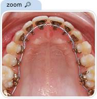 Lingual Orthodontic appliance on upper teeth