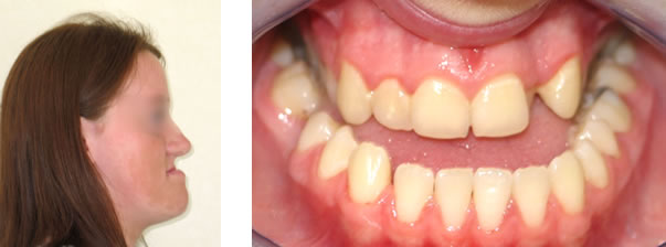 orthdonticsurgery1