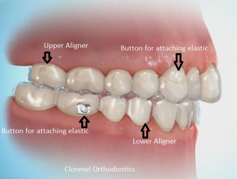 Aligner-with-buttons-2 What is Orthodontic Wax for?